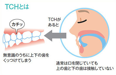 TCH:Tooth Contactin Habit